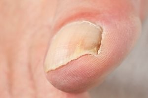 toenail fungus cured