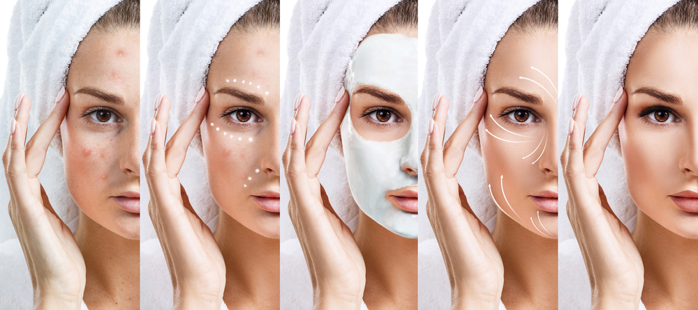 Five Strategies To Get Flawless Skin You Didn't Know About