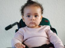 Ayah is 14 months old and suffers from spinal muscular atrophy, which affects one in 10,000 children